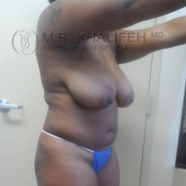 Midback-Bra Line Lipo Gallery - Patient 3761752 - Image 5