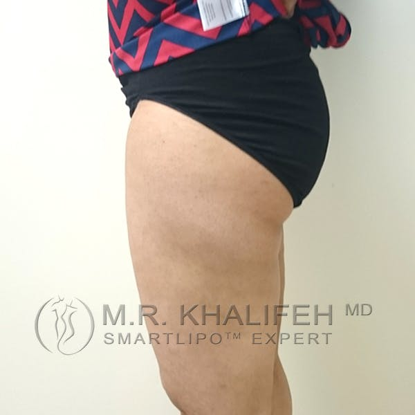 Outer Thigh Liposuction Gallery - Patient 3761750 - Image 10