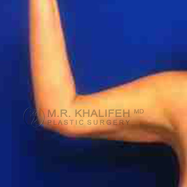 Arm Liposuction Gallery - Patient 3761751 - Image 4