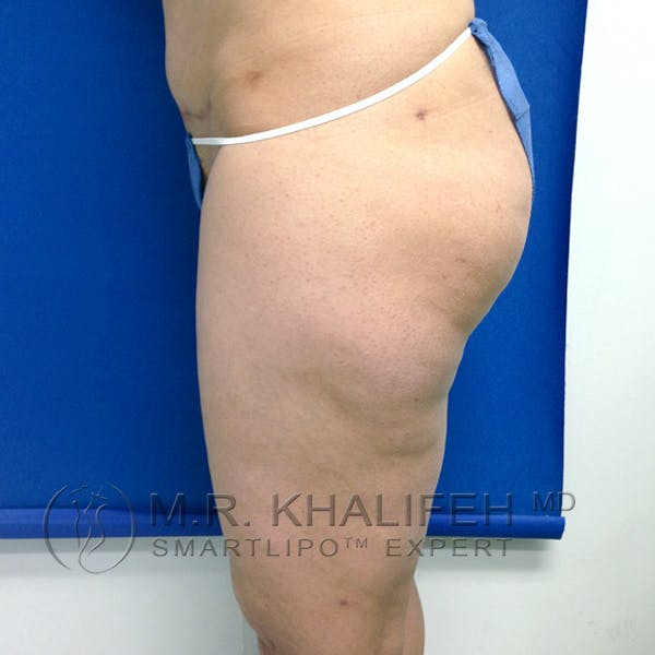 Inner Thigh Liposuction Gallery - Patient 3761755 - Image 9