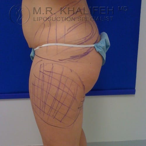 Outer Thigh Liposuction Gallery - Patient 3761760 - Image 3