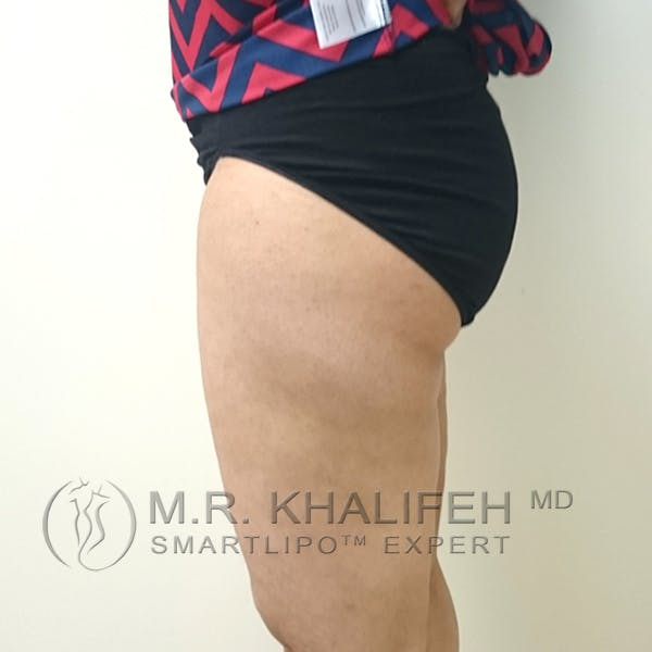 Inner Thigh Liposuction Gallery - Patient 3761755 - Image 10