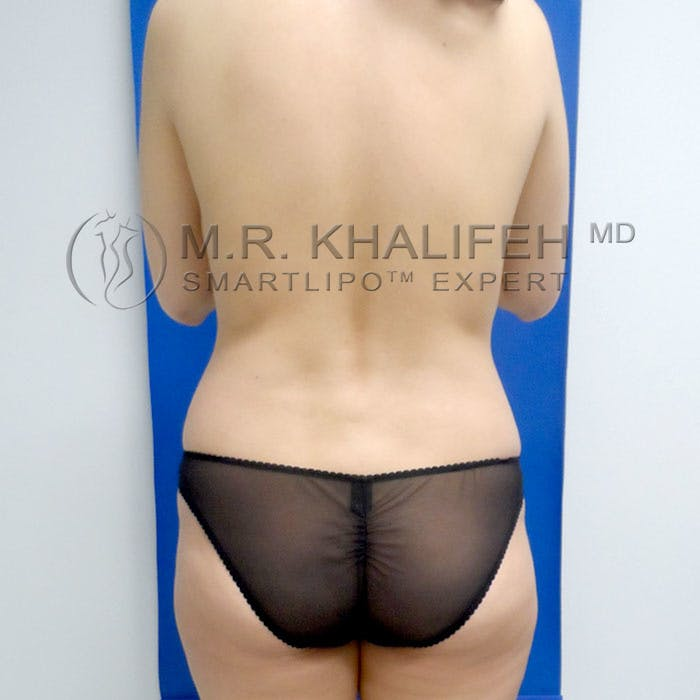 Midback-Bra Line Lipo Gallery - Patient 3761767 - Image 1