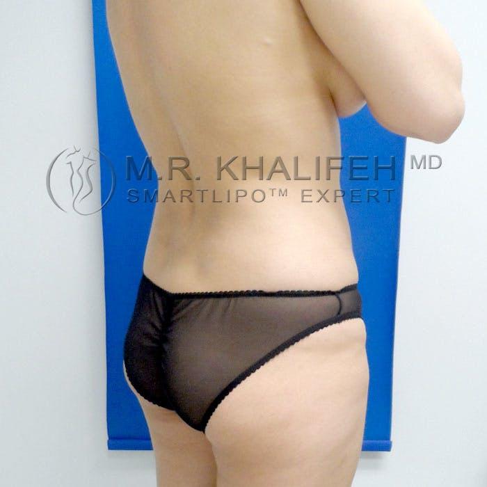 Midback-Bra Line Lipo Gallery - Patient 3761767 - Image 3