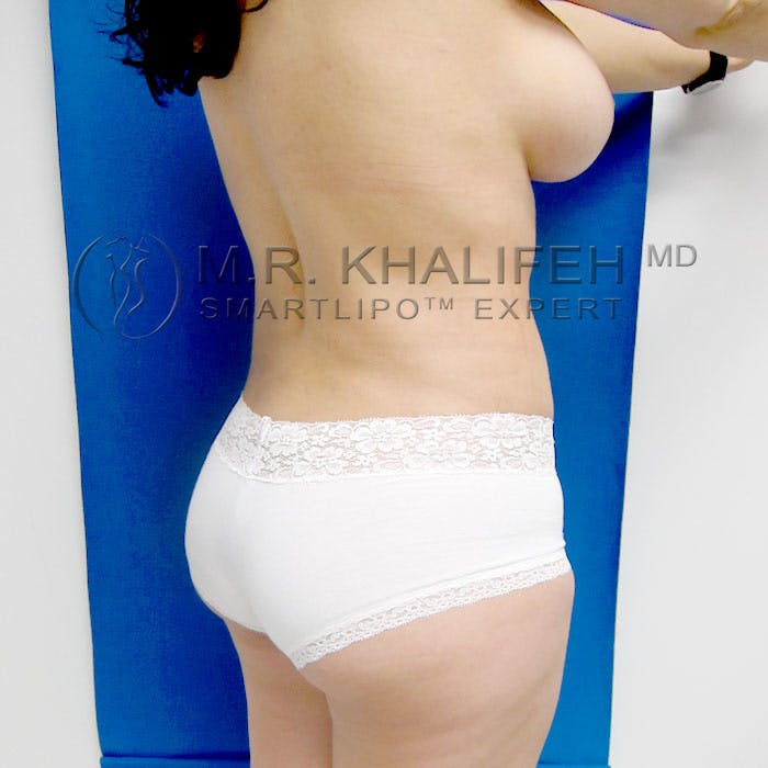 Midback-Bra Line Lipo Gallery - Patient 3761767 - Image 4