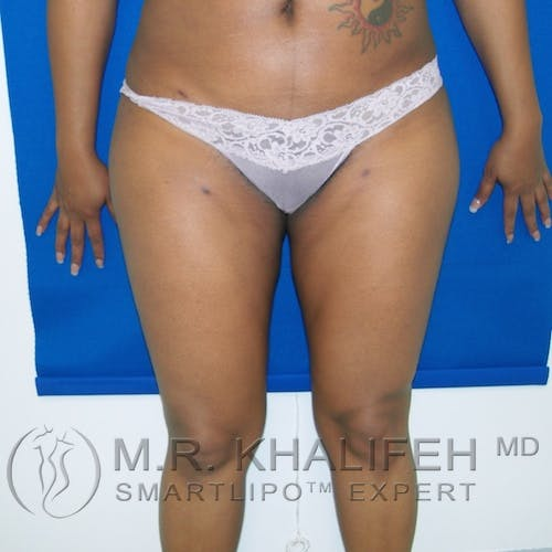 Inner Thigh Liposuction Gallery - Patient 3761761 - Image 4