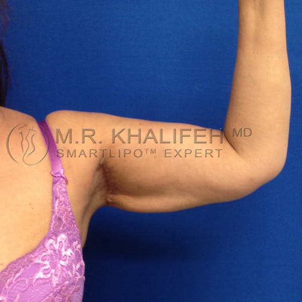Arm Liposuction Gallery - Patient 3761770 - Image 2