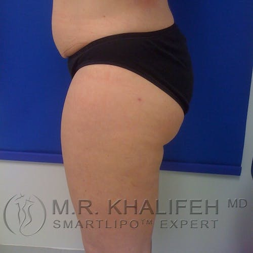 Inner Thigh Liposuction Gallery - Patient 3761769 - Image 4