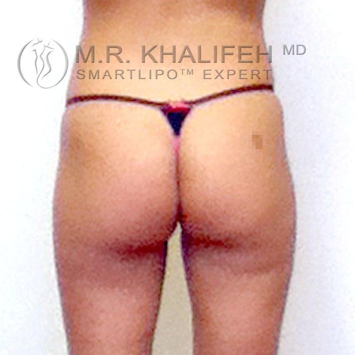 Midback-Bra Line Lipo Gallery - Patient 3761773 - Image 1