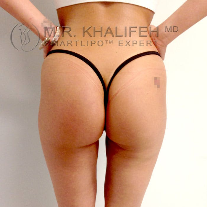 Midback-Bra Line Lipo Gallery - Patient 3761773 - Image 2