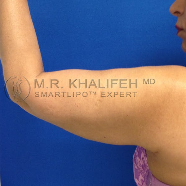 Arm Liposuction Gallery - Patient 3761770 - Image 6