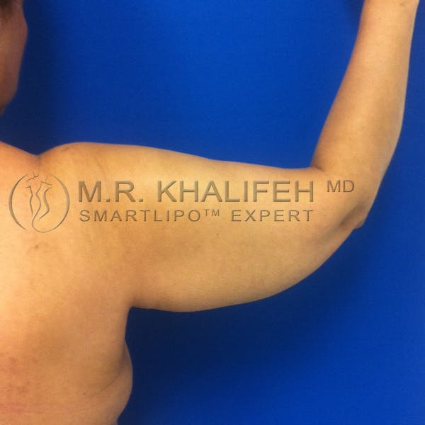 Arm Liposuction Gallery - Patient 3761770 - Image 7