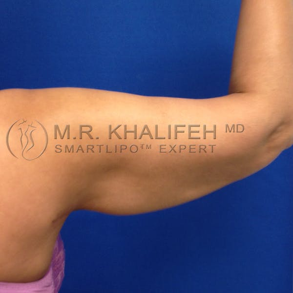 Arm Liposuction Gallery - Patient 3761770 - Image 8