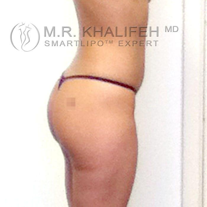 Midback-Bra Line Lipo Gallery - Patient 3761773 - Image 7