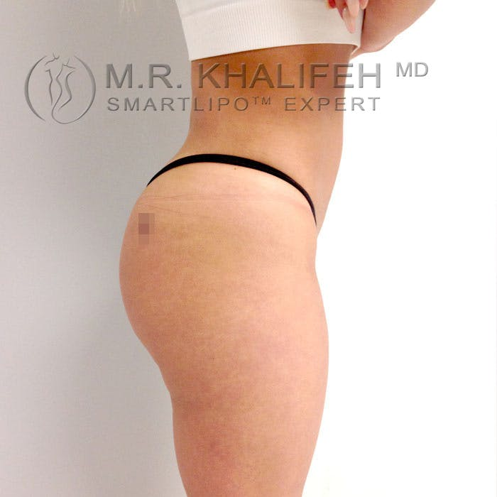 Midback-Bra Line Lipo Gallery - Patient 3761773 - Image 8