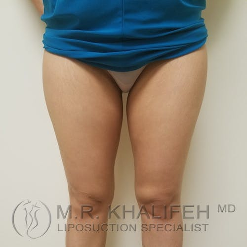 Inner Thigh Liposuction Gallery - Patient 3761776 - Image 2