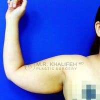 Arm Liposuction Gallery - Patient 3761777 - Image 1