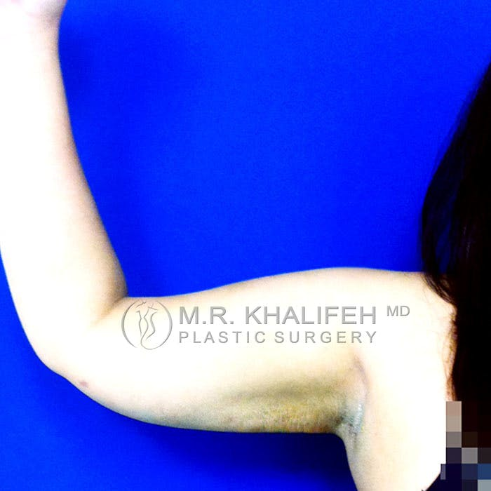Arm Liposuction Gallery - Patient 3761777 - Image 2