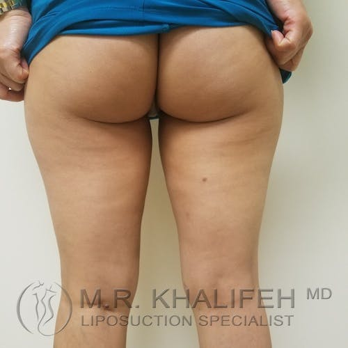 Inner Thigh Liposuction Gallery - Patient 3761776 - Image 4