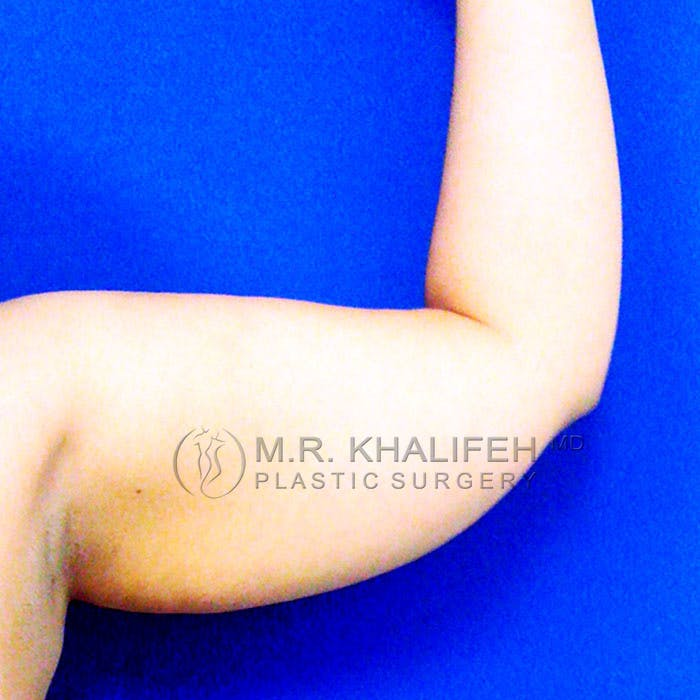 Arm Liposuction Gallery - Patient 3761777 - Image 3