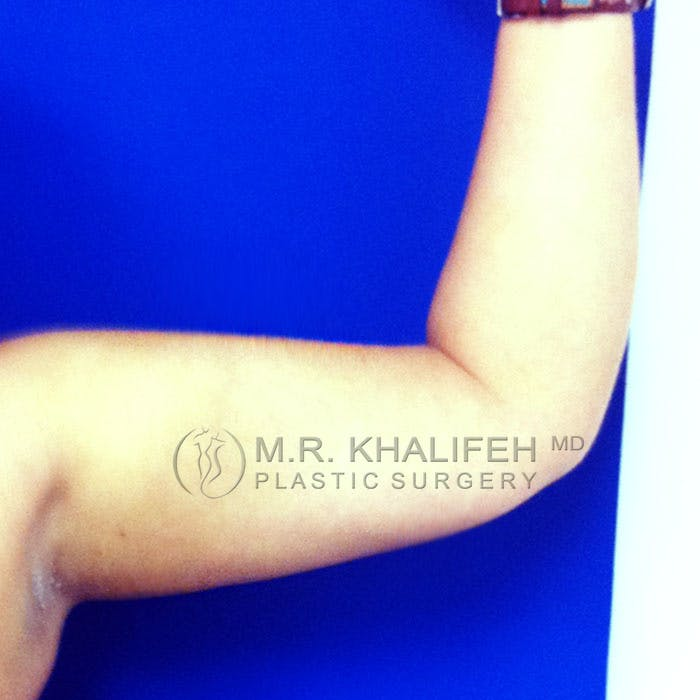 Arm Liposuction Gallery - Patient 3761777 - Image 4
