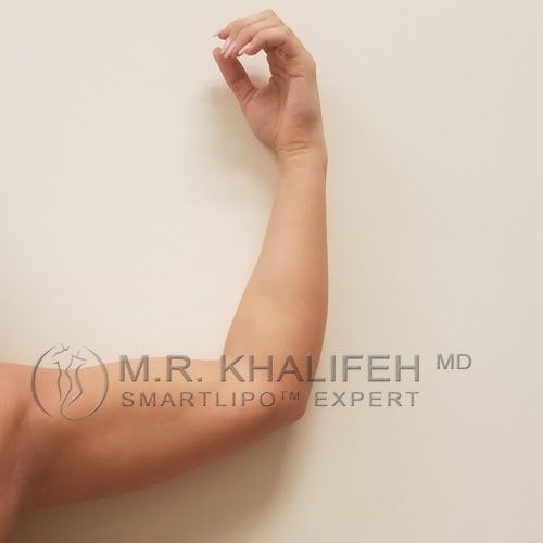 Arm Liposuction Gallery - Patient 3761783 - Image 2