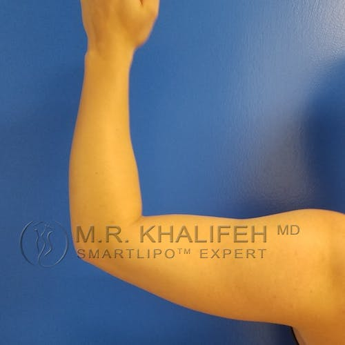 Arm Liposuction Gallery - Patient 3761783 - Image 5