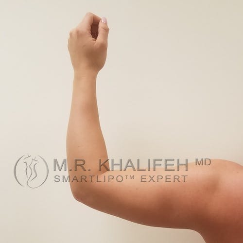 Arm Liposuction Gallery - Patient 3761783 - Image 6