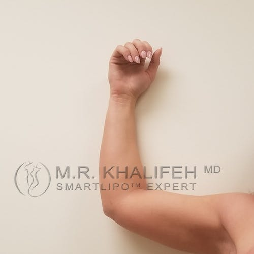 Arm Liposuction Gallery - Patient 3761783 - Image 7
