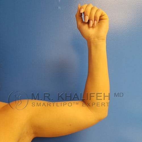 Arm Liposuction Gallery - Patient 3761783 - Image 8