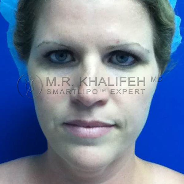 Chin and Neck Liposuction Gallery - Patient 3761786 - Image 1