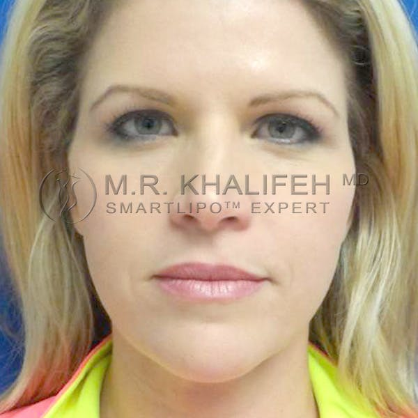Chin and Neck Liposuction Gallery - Patient 3761786 - Image 2