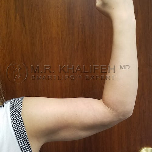Arm Liposuction Gallery - Patient 3761789 - Image 2