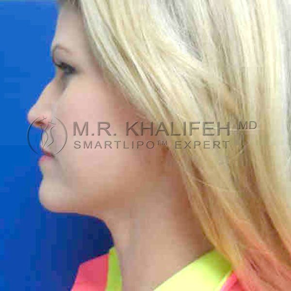Chin and Neck Liposuction Gallery - Patient 3761786 - Image 4