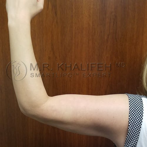 Arm Liposuction Gallery - Patient 3761789 - Image 4