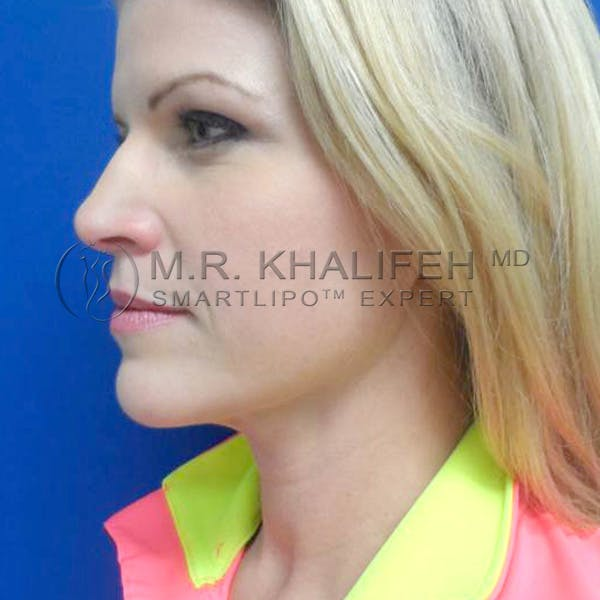 Chin and Neck Liposuction Gallery - Patient 3761786 - Image 6