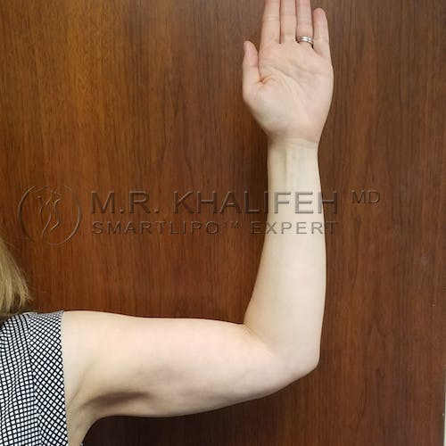 Arm Liposuction Gallery - Patient 3761789 - Image 6