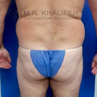 Midback-Bra Line Lipo Gallery - Patient 3761800 - Image 1
