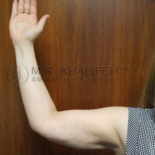 Arm Liposuction Gallery - Patient 3761789 - Image 8