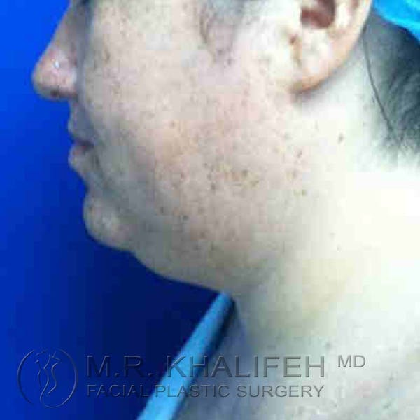 Chin and Neck Liposuction Gallery - Patient 3761798 - Image 3