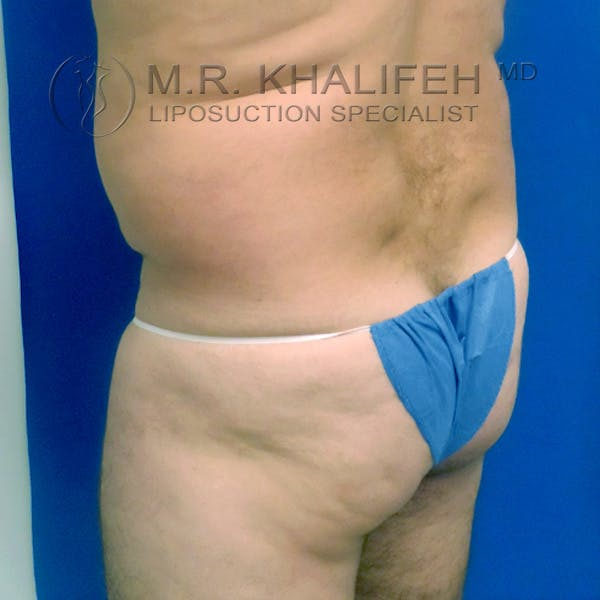 Midback-Bra Line Lipo Gallery - Patient 3761800 - Image 3