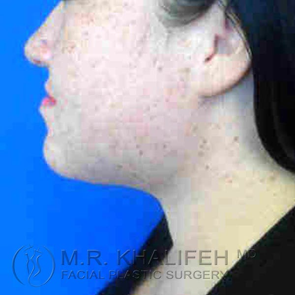 Chin and Neck Liposuction Gallery - Patient 3761798 - Image 4