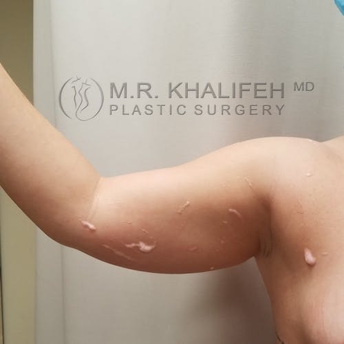 Arm Liposuction Gallery - Patient 3761801 - Image 1
