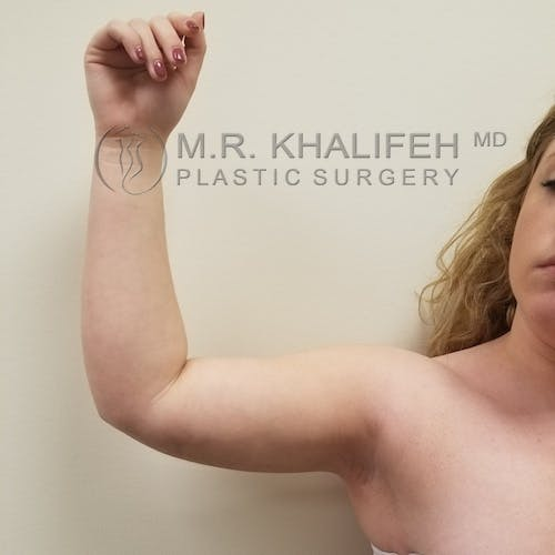 Arm Liposuction Gallery - Patient 3761801 - Image 2