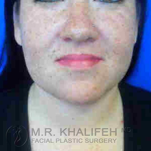 Chin and Neck Liposuction Gallery - Patient 3761798 - Image 6