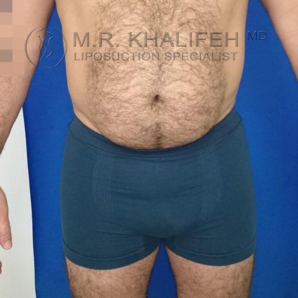 Midback-Bra Line Lipo Gallery - Patient 3761800 - Image 6