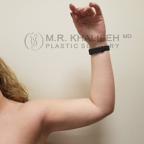 Arm Liposuction Gallery - Patient 3761801 - Image 4