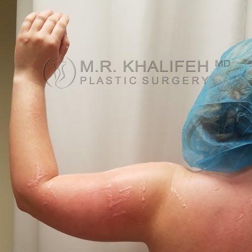 Arm Liposuction Gallery - Patient 3761801 - Image 5