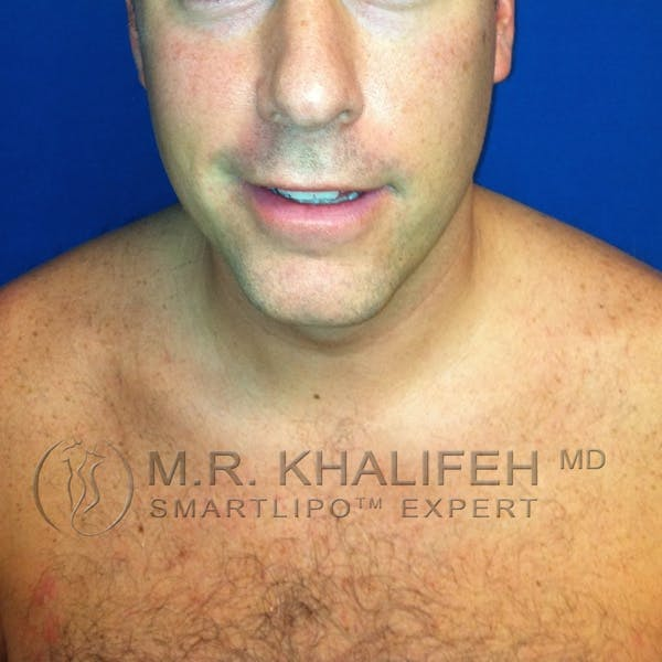 Chin and Neck Liposuction Gallery - Patient 3761802 - Image 1