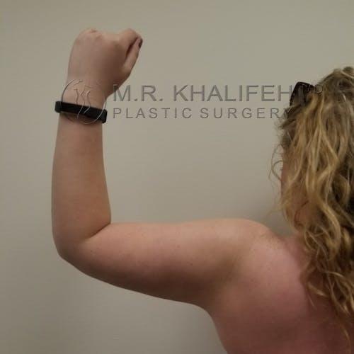 Arm Liposuction Gallery - Patient 3761801 - Image 6